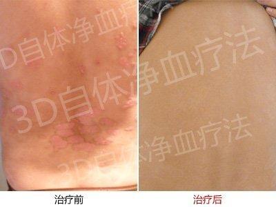 遗传性牛皮癣患者在郑州京科康复